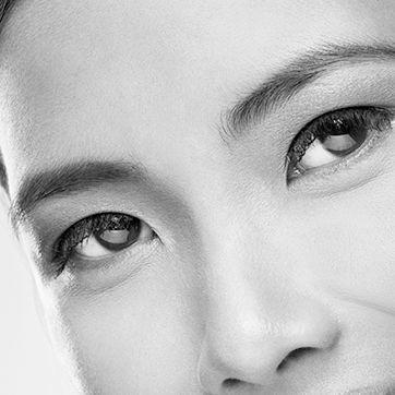 Asian Eyelid Surgery Toronto