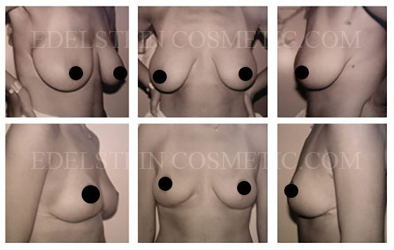 Breast Lift WIthout Augmentation
