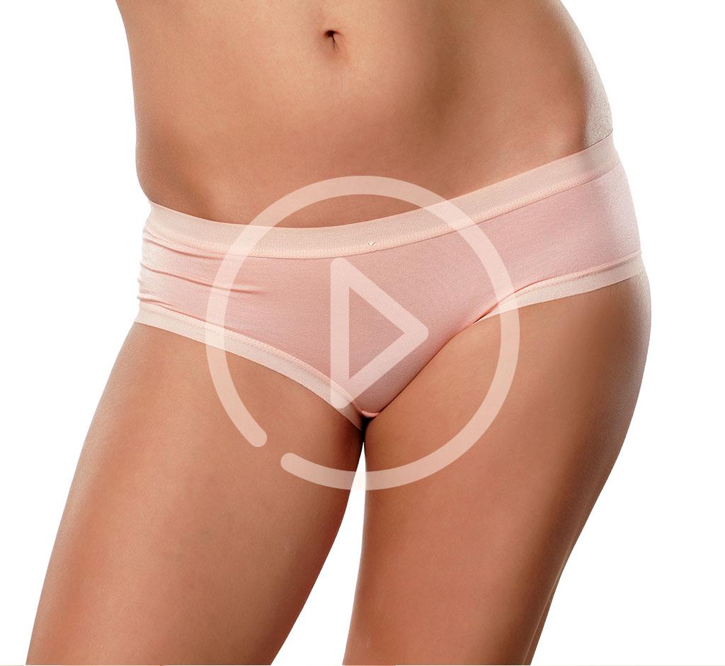 Labiaplasty - Labial Reduction Toronto
