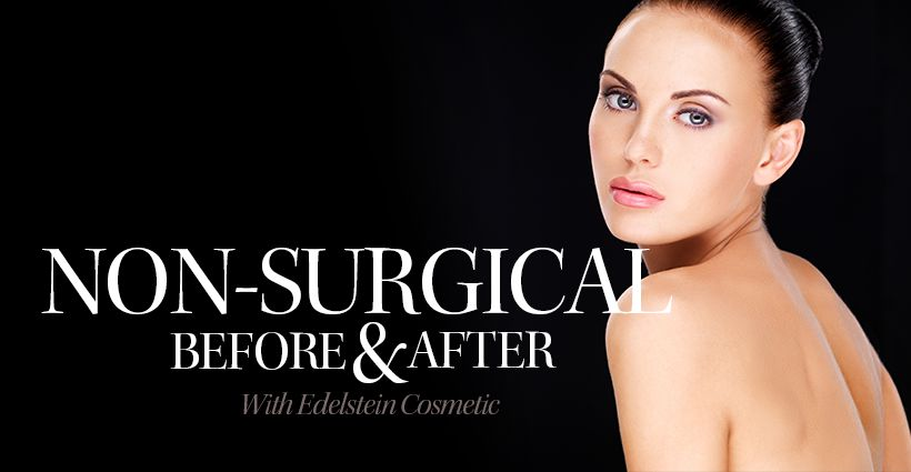 Non-surgical Procedures Toronto