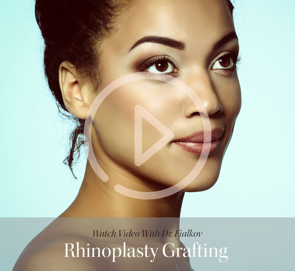 Rhinoplasty Toronto Interview