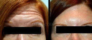 Botox Cosmetic Treatment Before & After p02