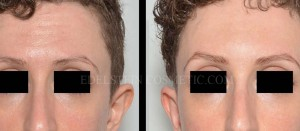Botox Cosmetic Treatment Before & After p04