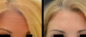 Botox Cosmetic Treatment Before & After p06