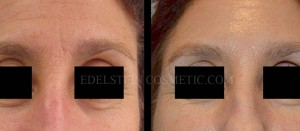 Botox Cosmetic Treatment Before & After p07