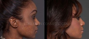 Primary Rhinoplasty Before & After - P11