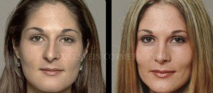 Primary Rhinoplasty Before & After - P03