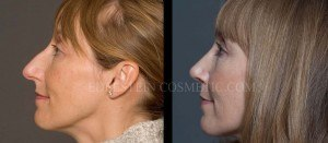 Primary Rhinoplasty Before & After - P04
