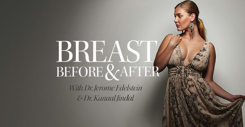Breast Surgery Toronto Before And After-04