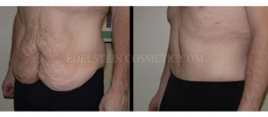 Tummy Tuck Before & After - P10