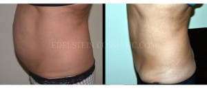 Tummy Tuck Before & After - P12