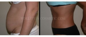 Tummy Tuck Before & After - P16