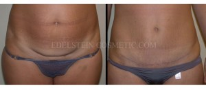 Tummy Tuck Before & After - P33