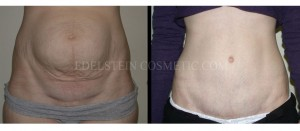 Tummy Tuck Before & After - P35