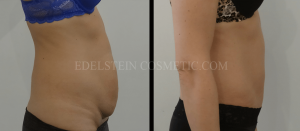 Tummy Tuck Before & After - P46
