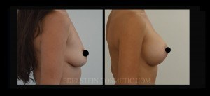 Breast Augmentation - Before & After P107b