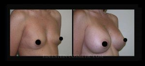 Breast Augmentation - Before & After P90b