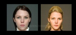 Primary Rhinoplasty Before & After - P10