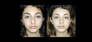 Primary Rhinoplasty Before & After - P05