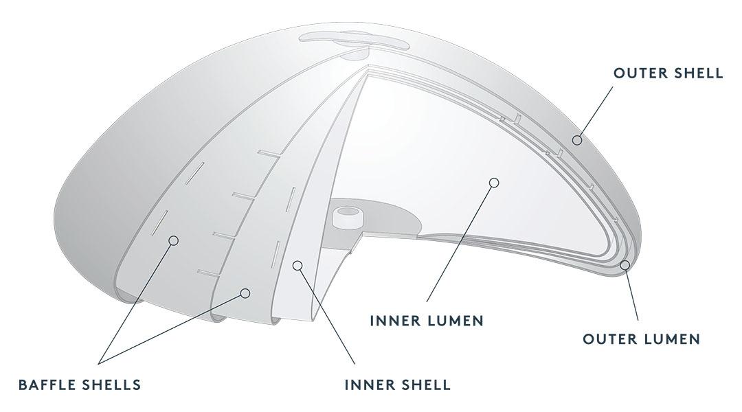 IDEAL Implants Toronto
