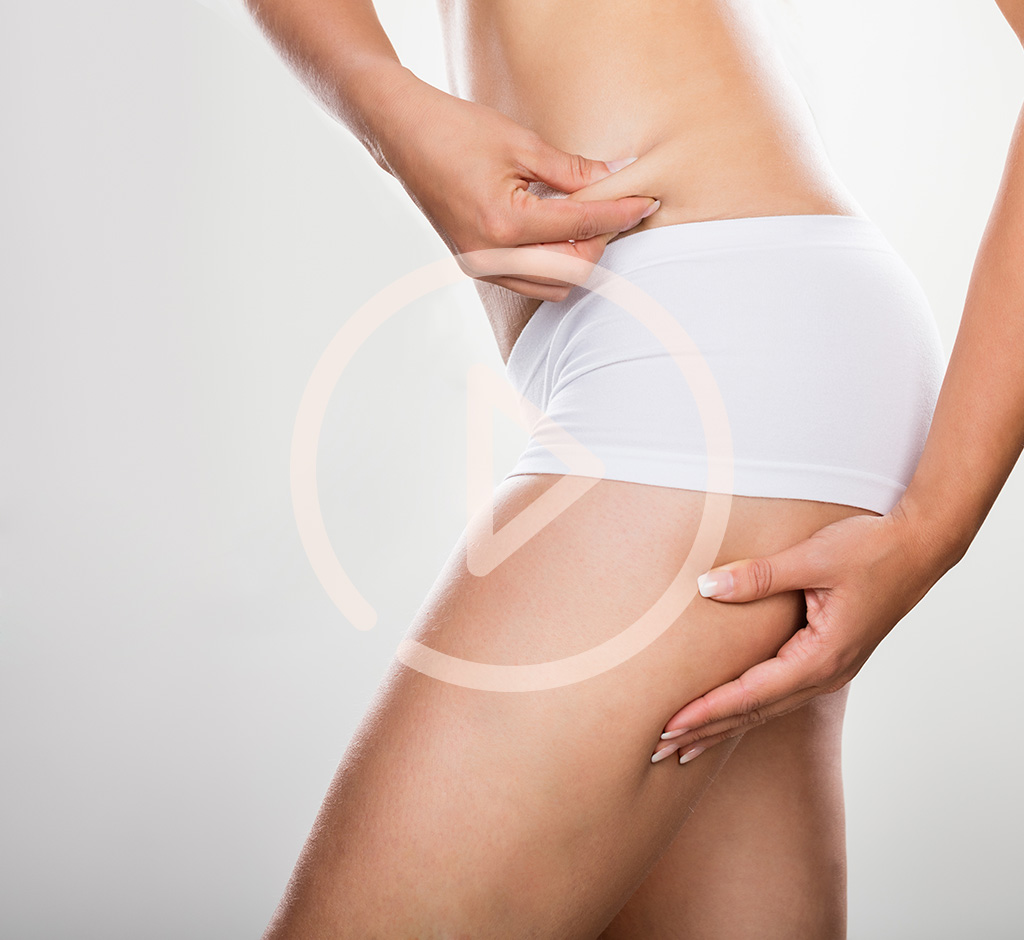 Abdominoplasty Tummy Tuck Toronto
