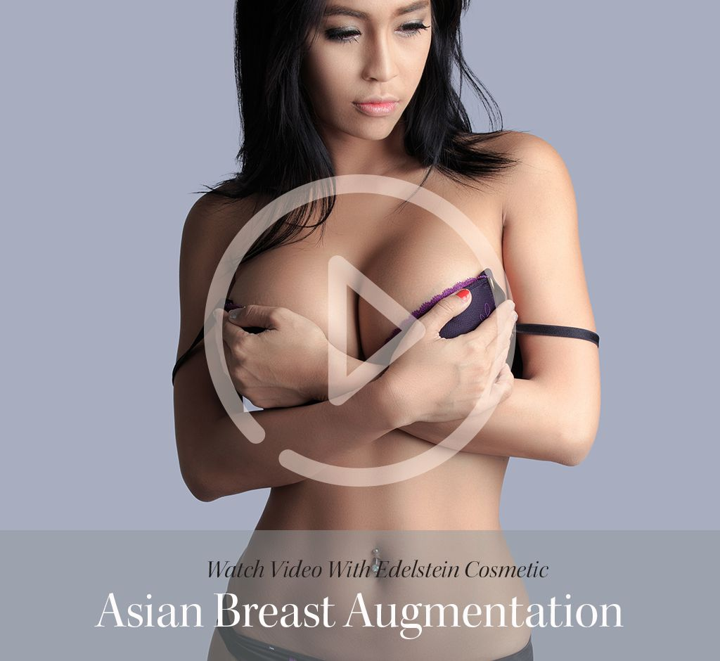 Asian Breast Augmentation Toronto - Dr Jerome Edelstein-7570
