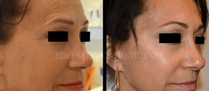 Botox Cosmetic Treatment Before & After p01