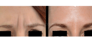 Botox Cosmetic Treatment Before & After p05