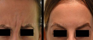 Botox Cosmetic Treatment Before & After p09