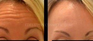 Botox Cosmetic Treatment Before & After p10