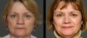 Primary Rhinoplasty Before & After - P07