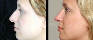 Primary Rhinoplasty Before & After - P12