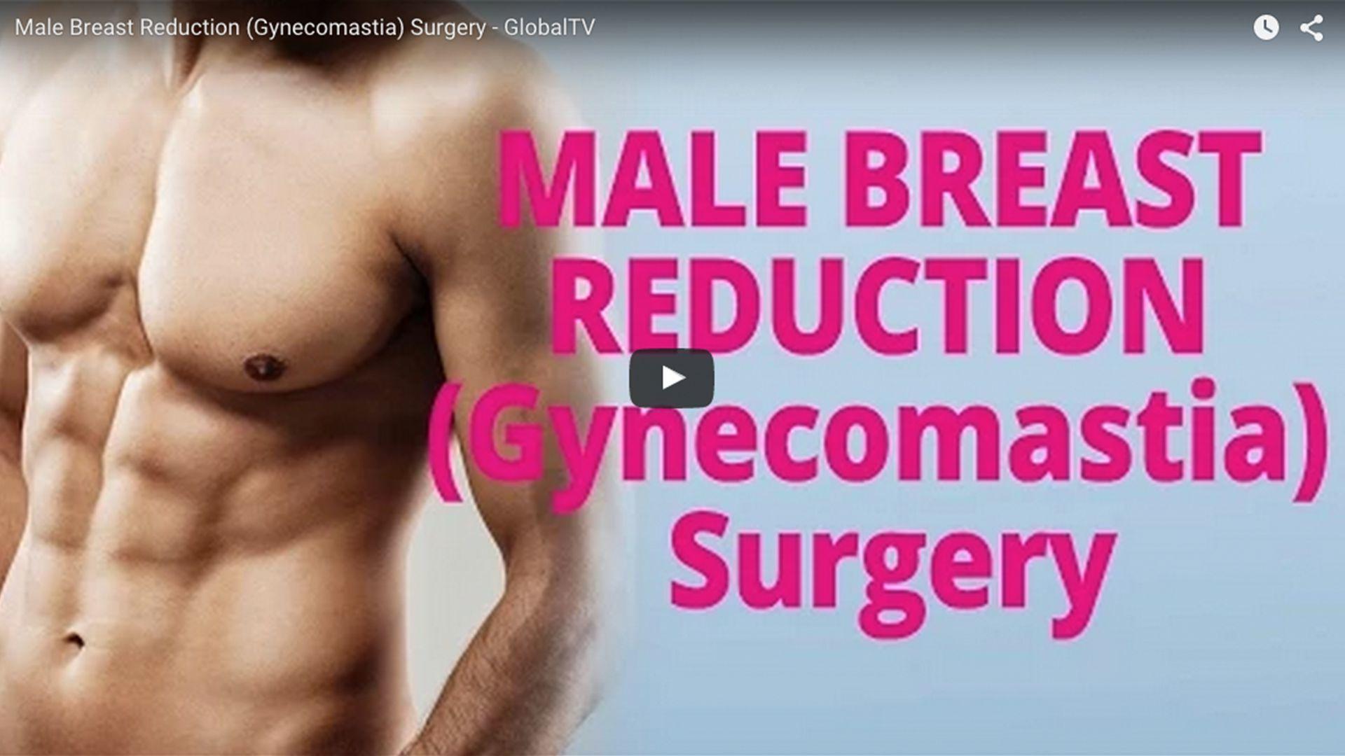 Male Breast Reduction (Gynecomastia) Surgery - GlobalTV