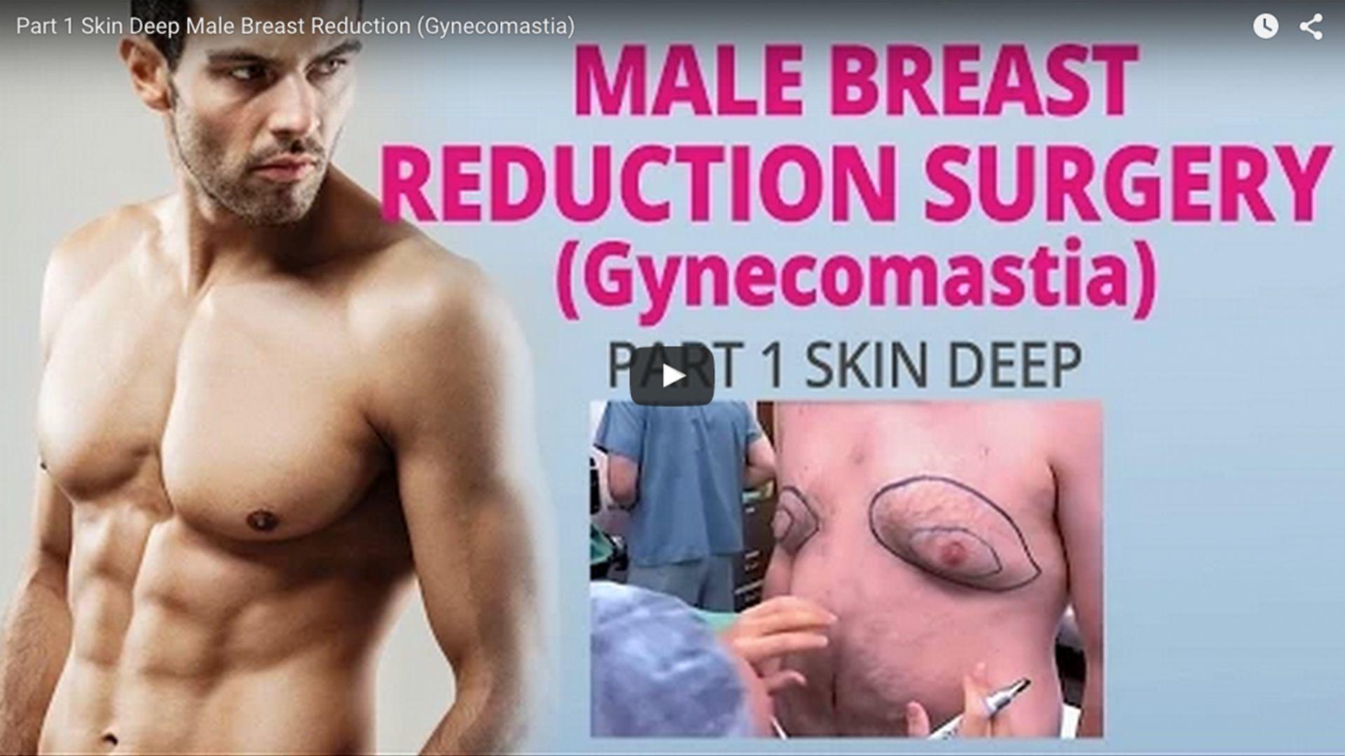 Breast Augmentation Plastic Makes Perfect TV Show