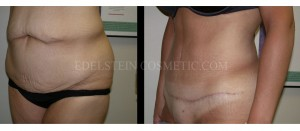 Tummy Tuck Before & After - P01
