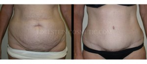 Tummy Tuck Before & After - P06