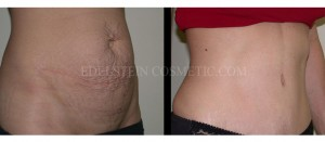 Tummy Tuck Before & After - P07