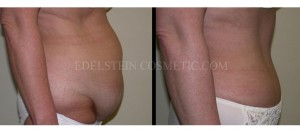 Tummy Tuck Before & After - P08