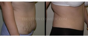 Tummy Tuck Before & After - P11