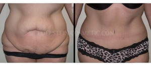 Tummy Tuck Before & After - P15