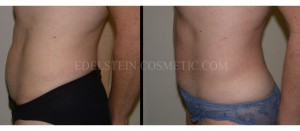 Tummy Tuck Before & After - P24