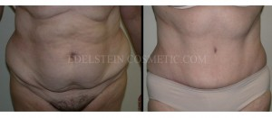 Tummy Tuck Before & After - P27