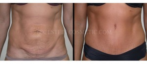Tummy Tuck Before & After - P28