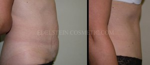 Tummy Tuck Before & After - P30