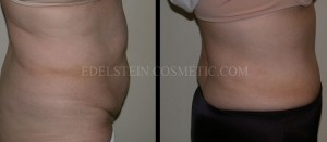 Tummy Tuck Before & After - P41