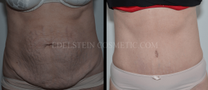 Tummy Tuck Before & After - P45
