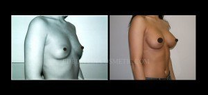 Breast Augmentation - Before & After P03a