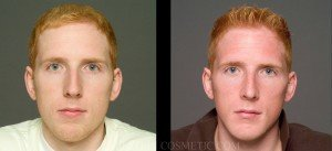 Primary Rhinoplasty Before & After - P06