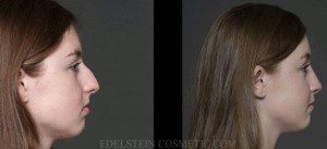 Rhinoplasty Before & After - P01