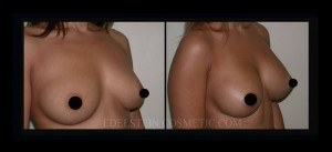 Breast Augmentation - Before & After P34a